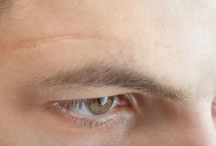 Narbenreduktion mit Narbenpflaster oder natürlichen Mitteln