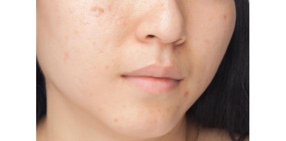 Aknenarben werden durch Laserbehandlungen oder Narbenpflaster minimiert