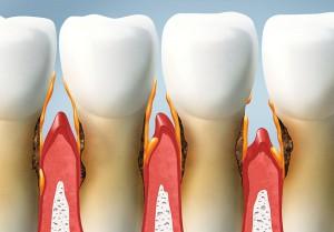 Zahnfleischtaschen behandeln