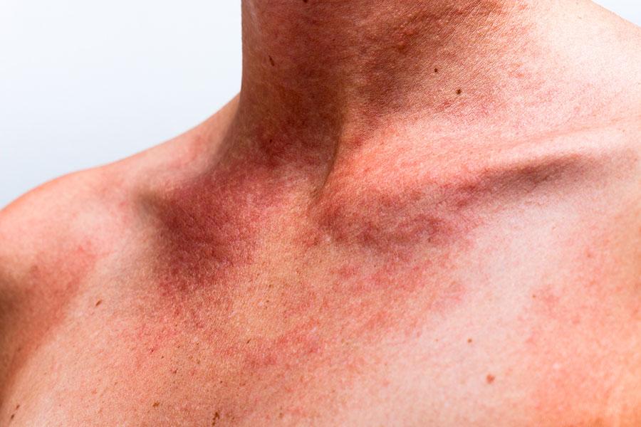 Mallorca Akne entsteht, wenn empfindliche Haut mit Sonnenschutzmittel und UV-Strahlung zu tun bekommt