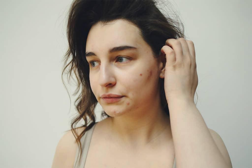 Unsere Haut spiegelt den psychischen Zustand wider